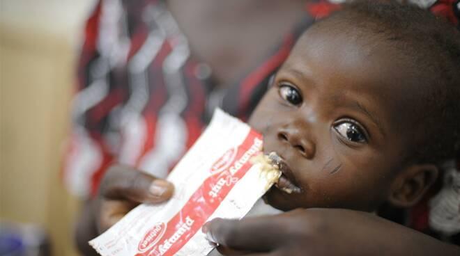 malnutrizione da sito unicef